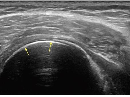 Aprendendo sobre ultrassonografia no sistema locomotor - imagens dos outros tecidos