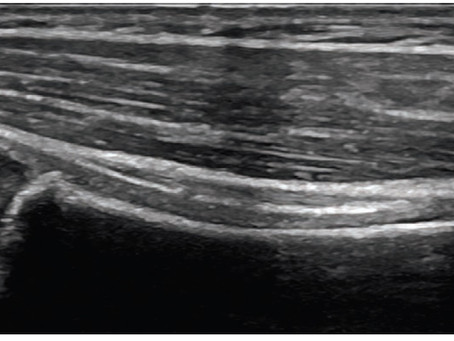 Aprendendo sobre ultrassonografia no sistema locomotor - otimização da imagem