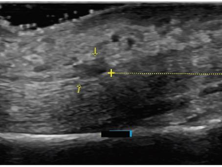 Aprendendo sobre ultrassonografia no sistema locomotor - imagens de corpos estranhos