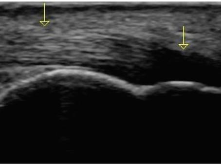 Aprendendo sobre ultrassonografia no sistema locomotor - artefatos
