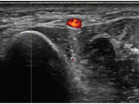 Aprendendo sobre ultrassonografia no sistema locomotor - uso do doppler