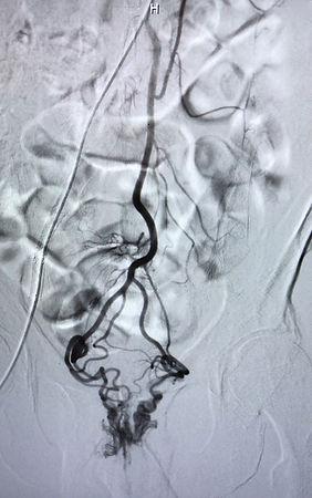 plexus hémorroïdaire engorgé