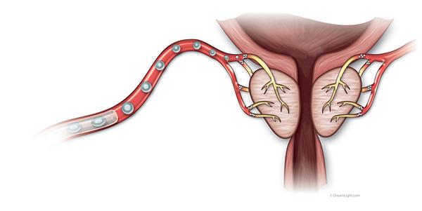 embolisation-prostate.png