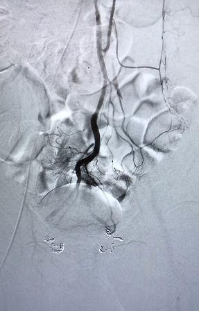 plexus hémorroïdaire désengorgé