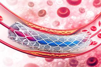 angioplastie pudendale.jpg