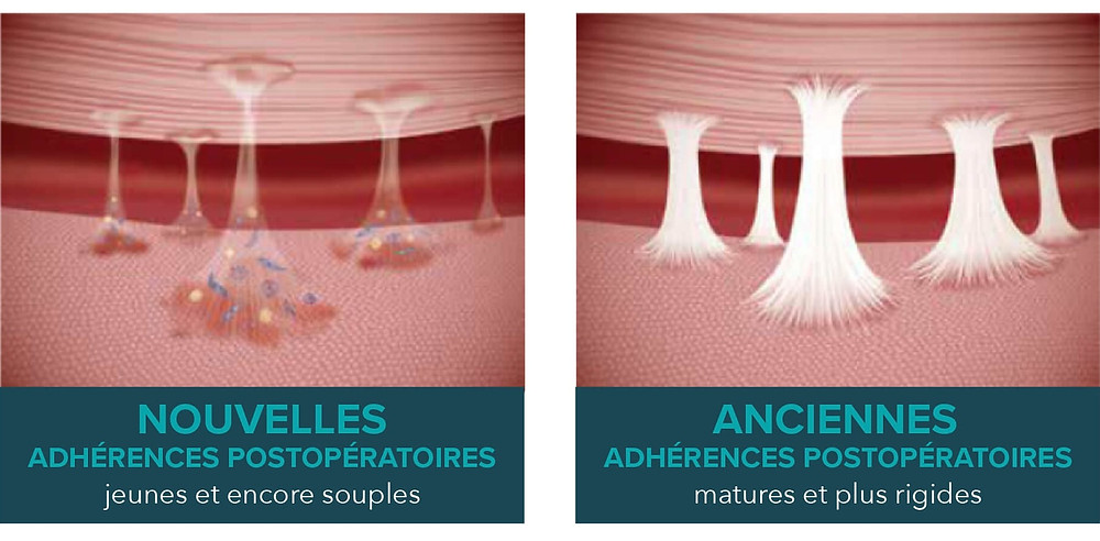 ADHERENCE - CHIRURGIE - OSTEOPATHIE - CORPS EN MAIN