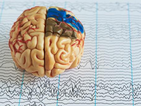 Acerca de la inclusión laboral en personas con Epilepsia.