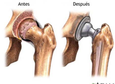 Cuidados para Endoprótesis de Cadera.