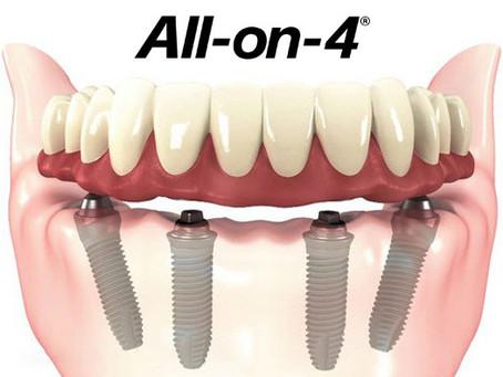 Impianti dentali? Le grandi bugie e l'esperienza reale!