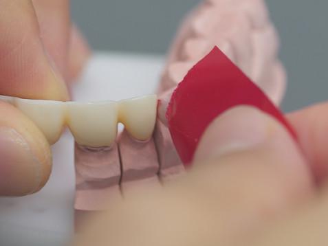 隣の歯との隙間の調整