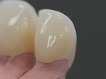 歯と歯茎-正常.jpg