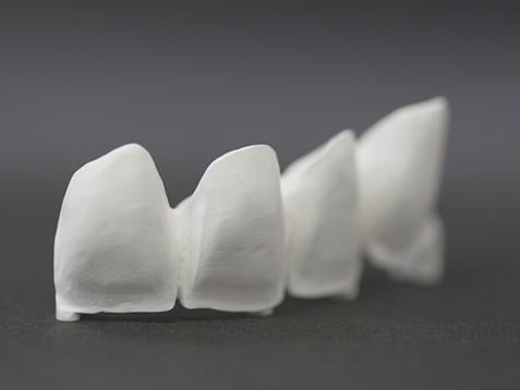 手作業後の歯
