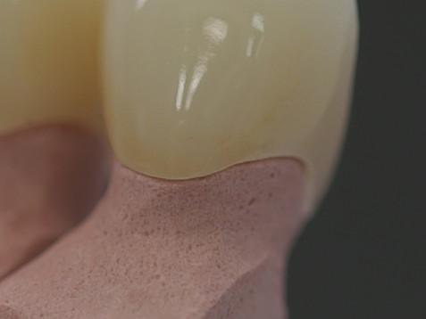 歯と歯茎の隙間の悪い例