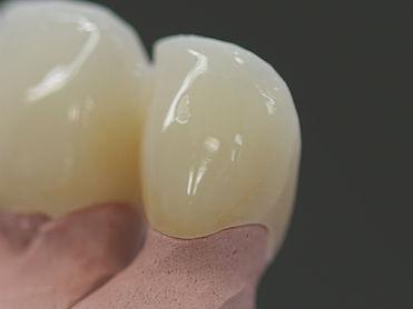 歯と歯茎-隙間.jpg