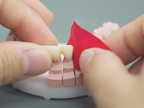 隣の歯との位置関係も重要です