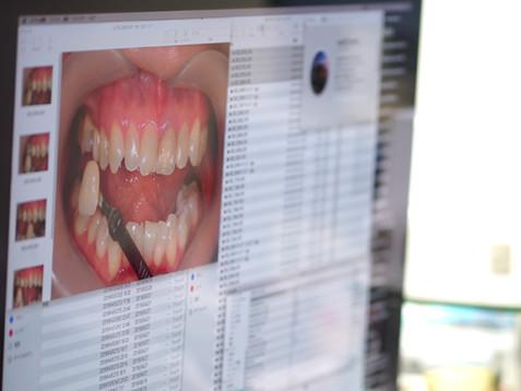 実物の歯を正確に撮影した写真が大切です
