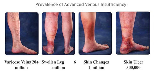 prevalence adv venous insufficiency.jpg