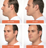 Kybella-Treatment-Male-Patient-Before-an