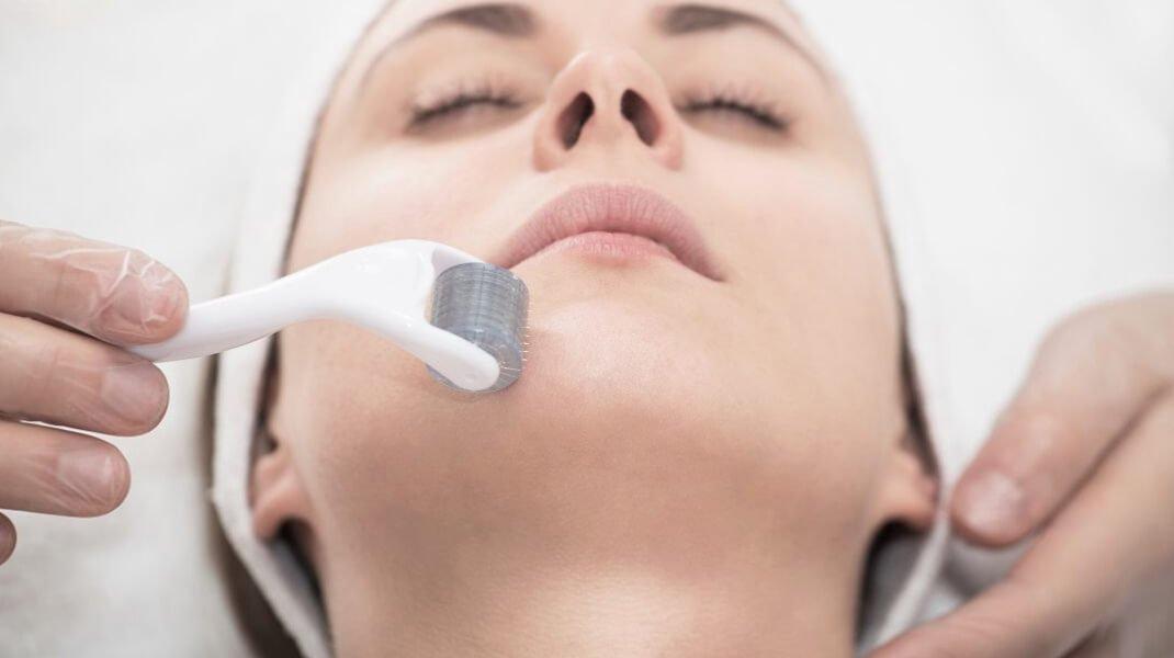 Level 4 Certificate in Skin Needling