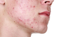 5 Tips To Help You Get Rid Of The Acne Monster