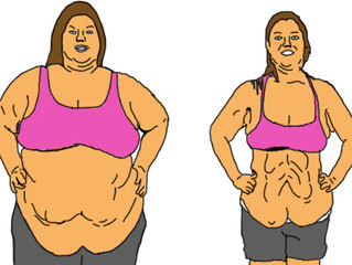 Why Gastric Bypass Surgery IS NOT A Shortcut To Losing Weight
