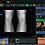 Thumbnail: Viztek Ultra U-Arm DR