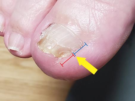 インソールで巻き爪が改善した例