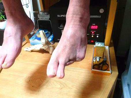 足趾切断のお客様