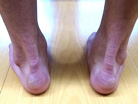 ハグルンド病には正しい靴選びとインソールを!