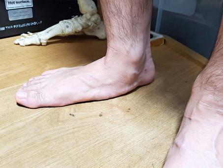 後脛骨筋機能不全症