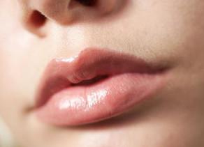 Arco do cupido: conheça procedimentos que conferem definição e volume aos lábios