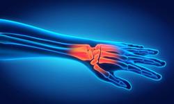 Hand/ Wrist Pain