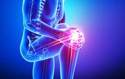 Knee Pain / Leg Pain
