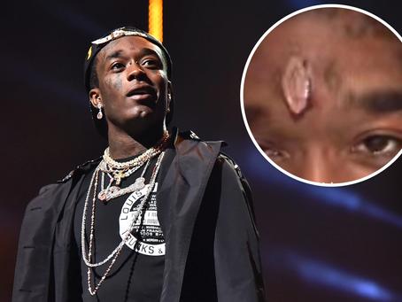 Lil Uzi Vert Spends $24M On Pink Diamond Face Implant