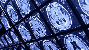 Bilgisayarlı Nöropsikolojik Değerlendirme