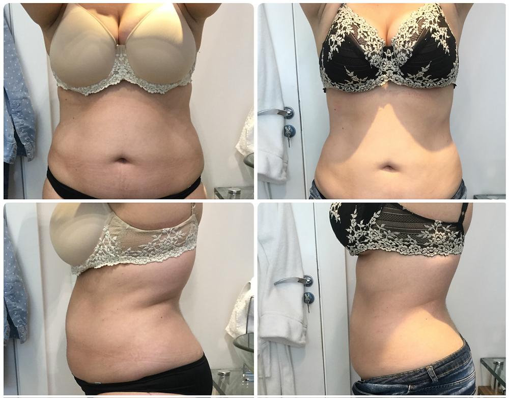 Antes e depois de redução de medidas com Power Shape e Criolipólise na cintura