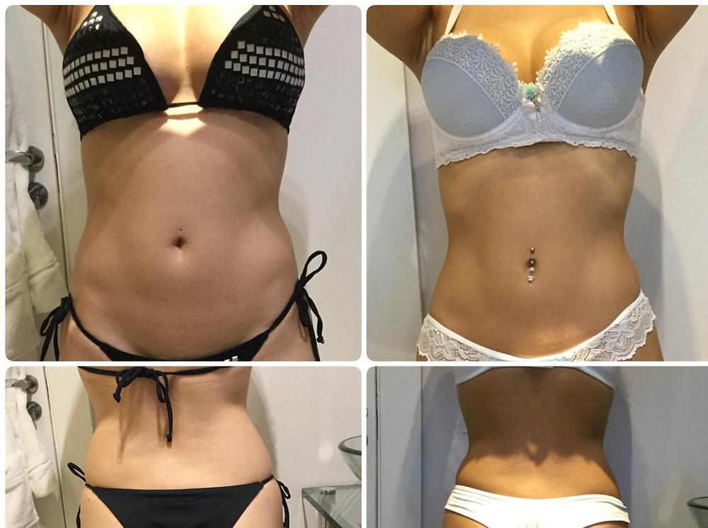 Antes e depois de tratamento com Power Shape e Criolipólise na cintura