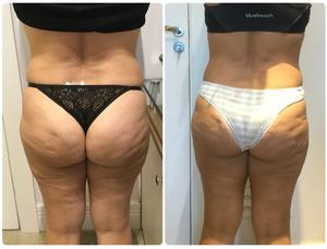 Antes e Depois do tratamento da celulite com Thork na região posterior dos glúteos