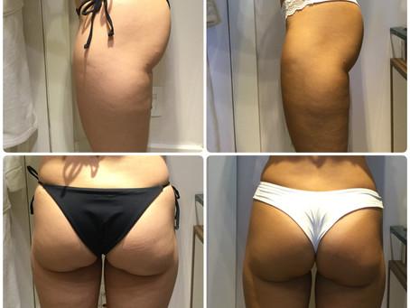 Power Shape – Tratamento Completo contra Celulite, Flacidez e Gordura Localizada