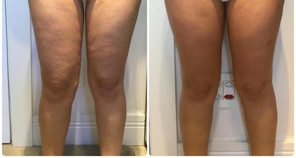 Antes e Depois do tratamento com Power Shape nas pernas