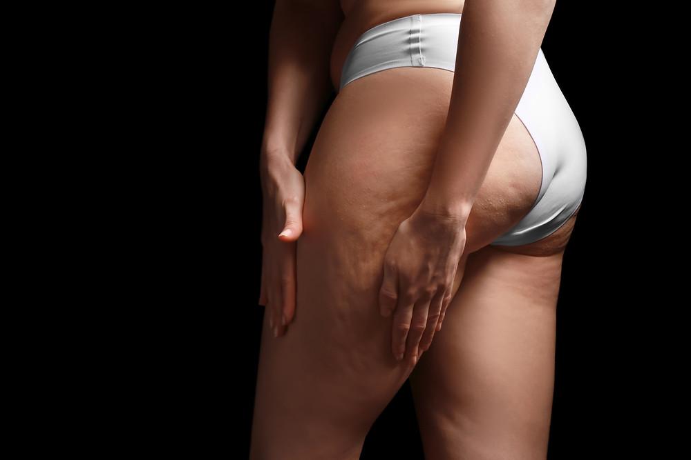Celulite na região das coxas e glúteos