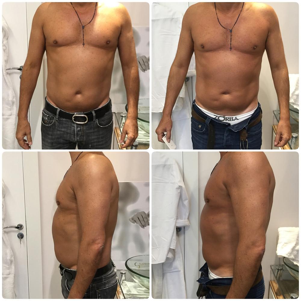 Antes e depois de redução de medidas com Power Shape e Criolipólise na cintura masculina