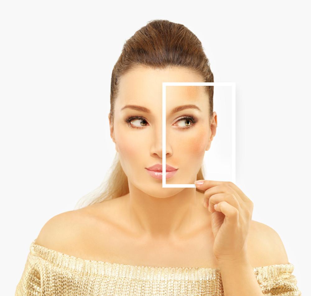 Representação de melasma na face de uma mulher