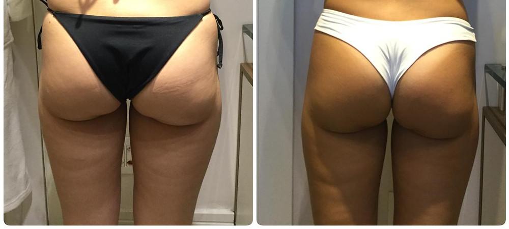 Antes e Depois do tratamento com Power Shape nos glúteos