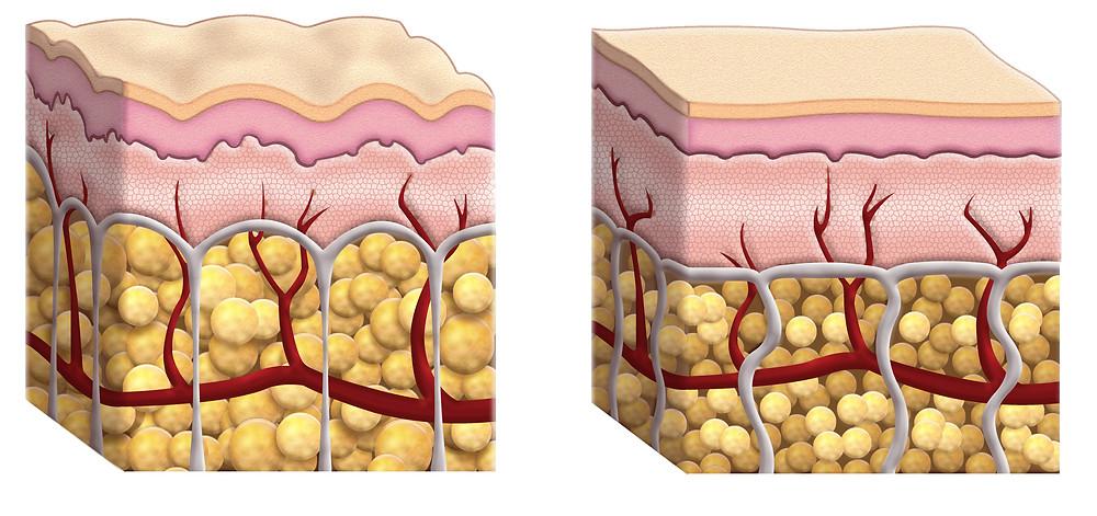 Representação da  pele com celulite  e da  pele sem celulite