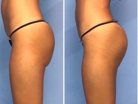 EmSculpt - O primeiro e único tratamento que aumenta e fortalece os músculos e queima gordura