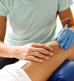 electroacupuncture-dry-with-needle-on-fe