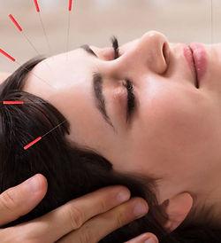 9-ways-constitutional-facial-acupuncture