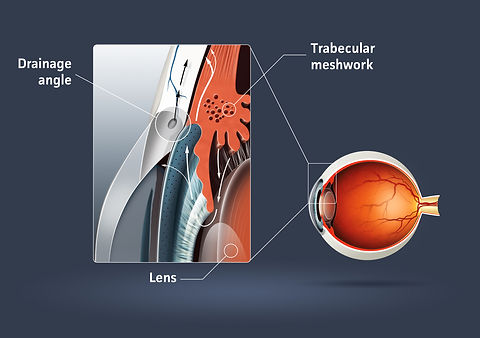 Human eye - glaucoma (eye disease).jpg