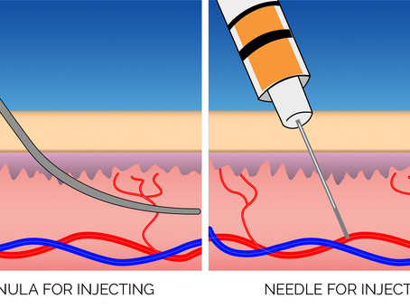 Cannula v. Needle for Male Enhancement - CHICAGO MALE ENHANCEMENT